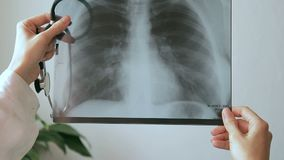 Medical worker holding a picture of the light-ray of human chest. stock footage