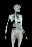 Medical X-Ray Bones on Black Stock Image
