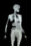 Medical X-Ray Bones on Black Stock Image