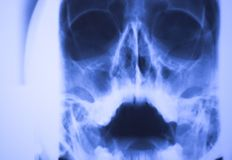 Medical Xray Face Scan Stock Image