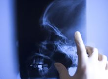 Medical xray face scan. Medical hospital x-ray face skull mouth, teeth, nose and eyes scan stock image