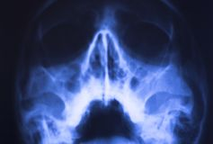 Medical xray face scan. Medical hospital x-ray face skull mouth, teeth, nose and eyes scan royalty free stock images