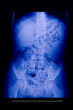 Medical Xray of spine and pelvis Royalty Free Stock Photography