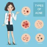 Medici raccomandano il tipo di acne illustrazione di stock