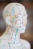 Medicina chinesa da acupuntura Fotos de Stock Royalty Free