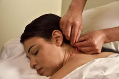Medicina chinesa do pescoço e da parte traseira de Accupuncture Imagens de Stock
