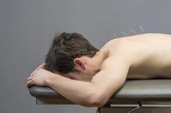 Medicina cinese che fa agopuntura fotografie stock libere da diritti