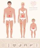 A medicina de família, homem, mulher, criança, dor aponta, vetor Imagem de Stock Royalty Free