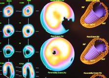 medicina nuclear de la isquemia cardiaca Fotografía de archivo libre de regalías