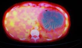 Medicina nuclear de las lesiones metastáticas del hígado de Petct fotografía de archivo