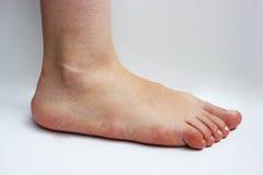 Medicina, pies planos, tarsoptosia, hembra del pie aislada imagen de archivo libre de regalías