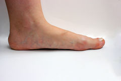 Medicina, pies planos, tarsoptosia, hembra del pie aislada imágenes de archivo libres de regalías
