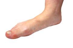 Medicine, flat feet, tarsoptosia,  foot female isolated on white background Royalty Free Stock Photos