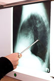 Medicine lab doctor pointing on x-ray no face Royalty Free Stock Photography