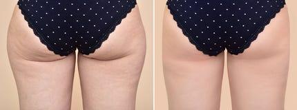 Medicinsk behandling för kvinna före och efter royaltyfria bilder