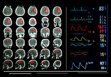 Medicinsk fältskärmbildskärm. Arkivbilder