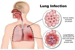 Medicinsk illustration för lungainfektionlunginflammation 3d på vit bakgrund stock illustrationer
