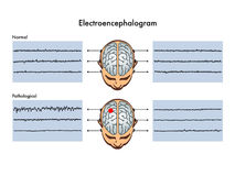 Electroencephalogram vektor illustrationer