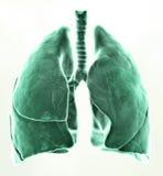 medicinska lungs för illustration 3d Arkivbild