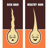 Medicinskt bildande sjuk och sund hår för affisch, vektorillustration royaltyfri illustrationer