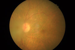 Medicinskt foto av retinal patologi, oordningar av scleraen, hornhinna, starr arkivfoton