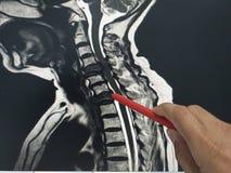 Medico alto vicino della mano che tiene una penna rossa dice al paziente l'esame della c-spina dorsale di mri fotografia stock libera da diritti