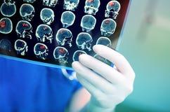 Medico attentamente esamina la risonanza magnetica del paziente fotografia stock libera da diritti