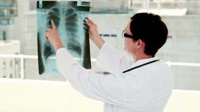 Medico che analizza i risultati dei raggi x archivi video