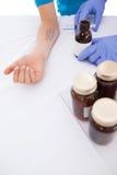 Medico che effettua la prova della puntura della pelle al suo paziente Immagini Stock