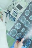 Medico che esamina ricerca di CT del paziente in ICU fotografia stock