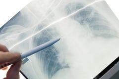 Medico che ispeziona la lastra radioscopica paziente del ` s fotografie stock libere da diritti