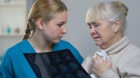 Medico che mostra i raggi x femminili anziani di tumore cerebrale, cattive notizie, malattia incurabile stock footage