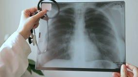 Medico in clinica in mani che tengono un'immagine dei raggi x del petto umano stock footage
