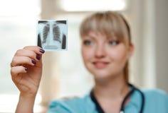 Medico della donna che guarda i raggi x Fotografia Stock Libera da Diritti