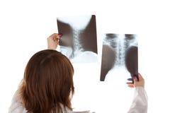 Medico e RAGGI X Fotografia Stock Libera da Diritti