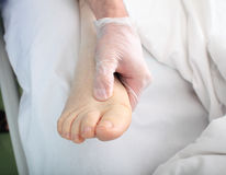 Medico esamina il piede con l'edema Fotografia Stock