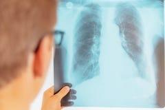 Medico esamina l'immagine dei raggi x dei polmoni fotografia stock