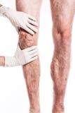 Medico in guanti medici esamina una persona con le vene varicose o immagine stock