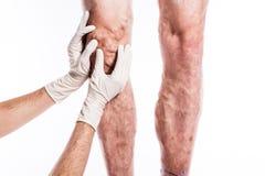 Medico in guanti medici esamina una persona con le vene varicose o fotografie stock libere da diritti