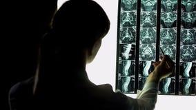 Medico ospedaliero femminile attentamente che controlla raggi x pazienti, esame di lesione fotografia stock