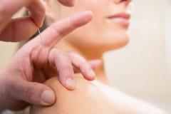 Medique a agulha da acupunctura das mãos que pricking na mulher foto de stock