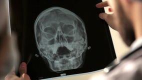 Medique a análise da imagem de seleção humana do raio X do crânio no hospital filme