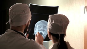 Medique a análise da imagem de seleção humana do raio X do crânio no hospital video estoque