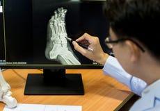 Medique apontar no ponto do problema do pé no filme de raio X pé de esqueleto da mostra do filme de raio X no filme foto de stock