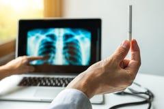 Medique guardar um cigarro e mostrar o raio X dos pulmões Conceito da prevenção do câncer dos pulmões foto de stock royalty free