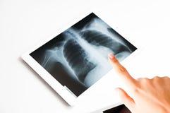 Medique o exame e apontar de resultados do pulmão do raio X na tabuleta digital imagens de stock