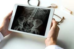 Medique a observação de um raio X dos quadris e da espinha para a dor nas costas na tabuleta digital Conceito da radiologia imagens de stock royalty free