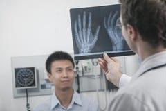 Medique a sustentação e a vista do raio X dos ossos de mão dos pacientes, paciente no fundo foto de stock royalty free