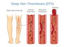 Medisch Diagram van Diepe Adertrombose bij beengebied vector illustratie