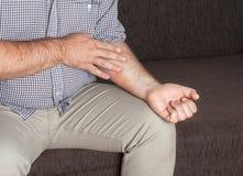 Medisch eczema, Stock Afbeeldingen